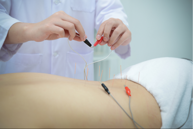 Electroacupuncture treatment